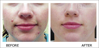 Palomar medical laser stretch marks scars and acne johannesburg before and after pictures acne scarring ccuart Gallery