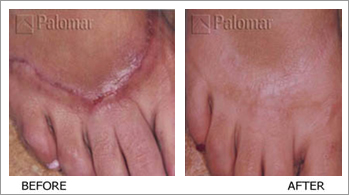Palomar Medical Laser Stretch Marks Scars And Acne
