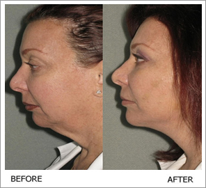 Silhouette Face Lift | New Face Lift Technology | Silhouette